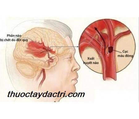 Thuốc hạ áp amlodipine giảm nguy cơ đột quỵ